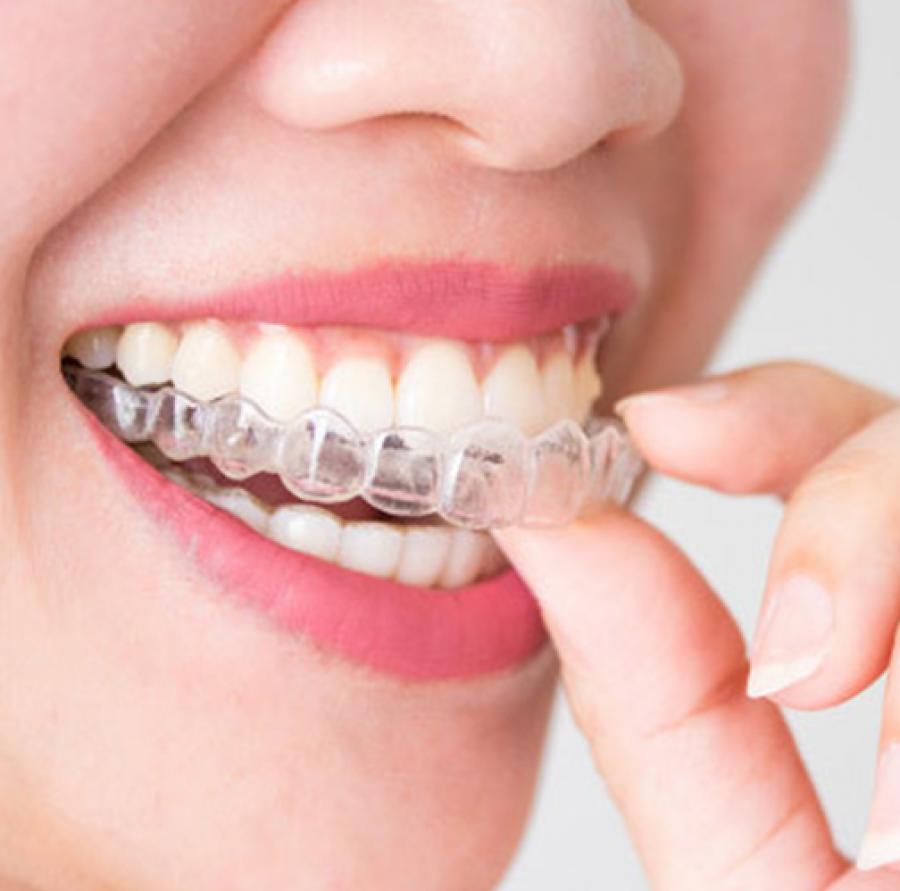 Ortodonti Uygulamaları