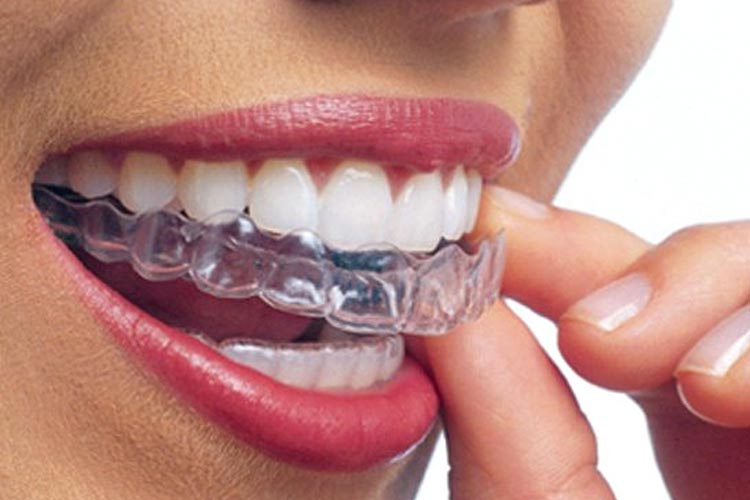 Clear aligners (Invisalign)