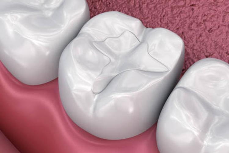 Ağız-Diş Bakımı Ve Beslenme Önerileri